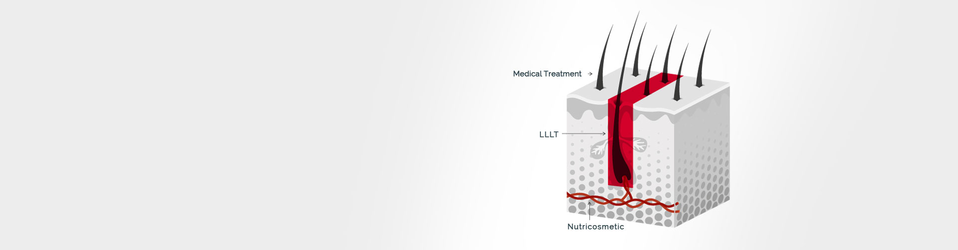 hair-loss-treatment-hr3